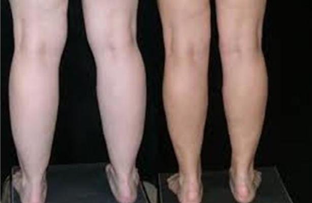 45_Liposuction-calves